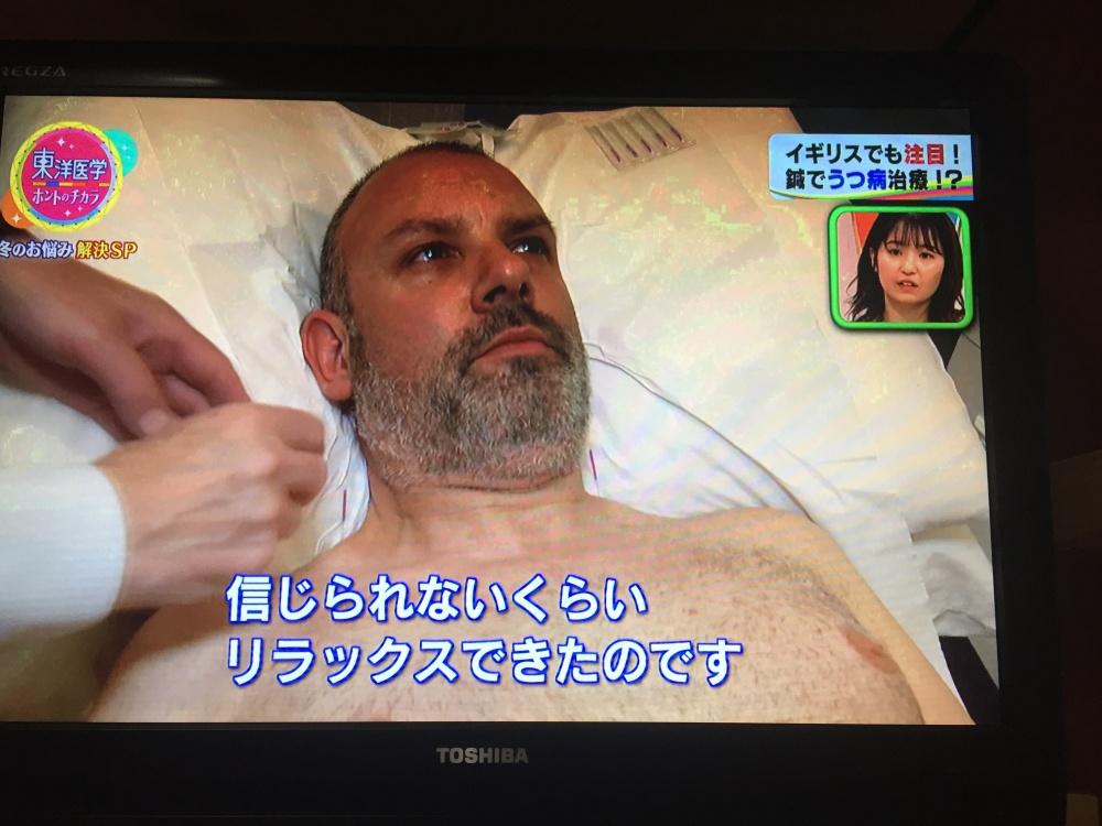 鍼治療を受けるイギリス人のうつ病患者